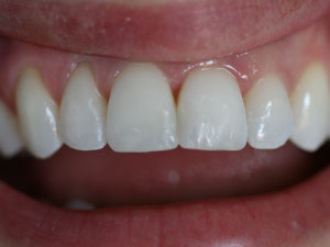 Patient with two restored and healthy teeth