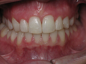 Person with aligned teeth