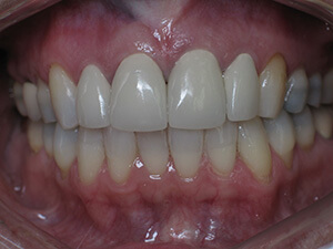 Person with aligned teeth and no gum damage