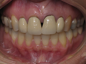 Person with gaps in teeth with slight gum damage