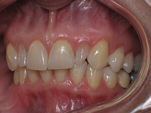 Person with malformed tooth