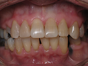 Person with now stain-free teeth