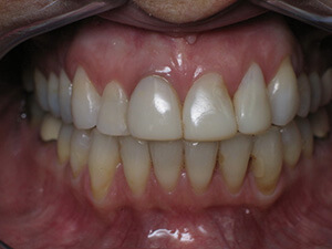 Person with yellow stained teeth