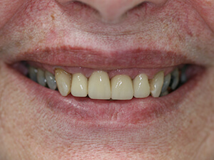 Person with aligned and white teeth