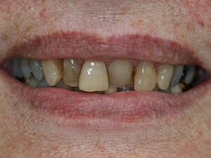 Person with very stained and crooked teeth