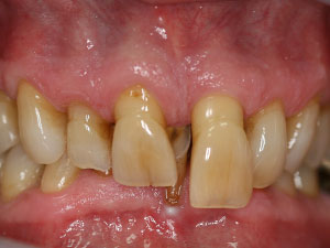Person with severe gaps and extruded teeth