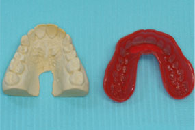 Proform and model teeth side by side
