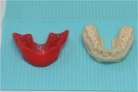 Front view of proform and model teeth