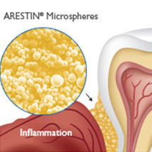 Diagram of ARESTIN and teeth