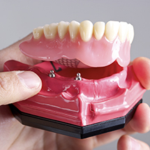Person holding model of implant-retained dentures