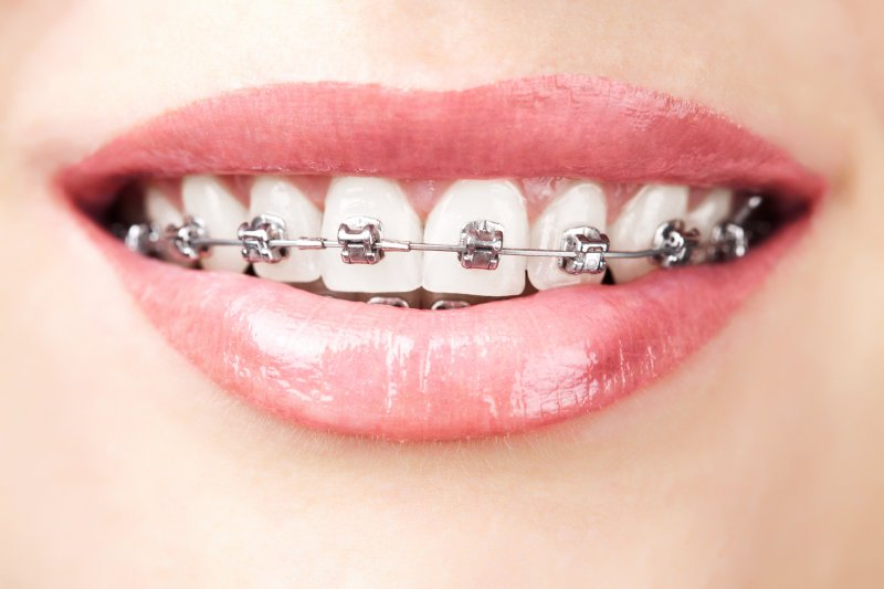 young lady blonde hair wearing braces
